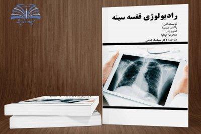 رادیولوژی قفسه سینه